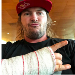 TOBY PRICE SUFFERS WRIST INJURY